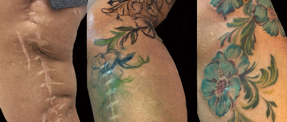 tatuajes reparadores