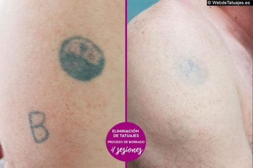 Eliminación de Tatuajes en Galicia